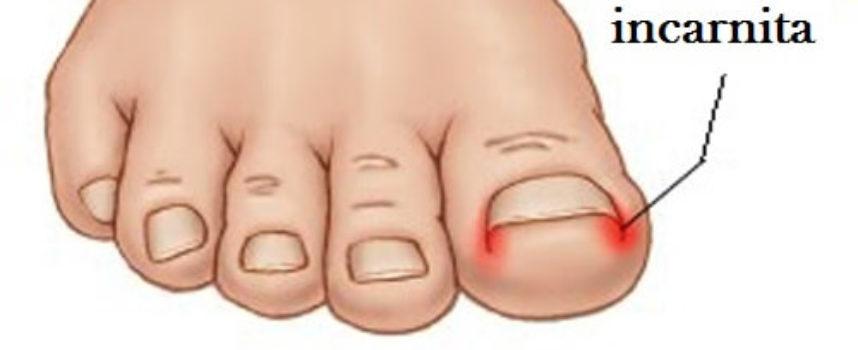 """Ecco come prevenire e curare l'unghia incarnita grazie a queste semplici tecniche """"fai da te"""""""