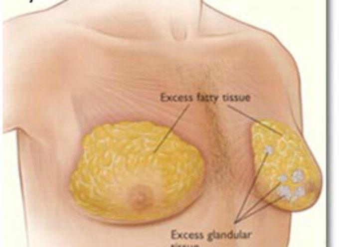 Risperdal: Johnson & Johnson sotto accusa da migliaia di uomini per aver nascosto studi farmaceutici che mostrano come il farmaco causi aumento del seno.