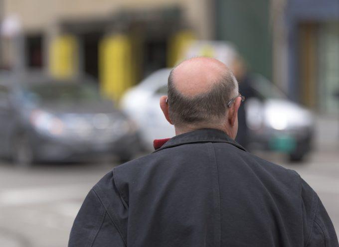La caduta dei capelli è legata ai geni materni e testosterone: come combatterla con la caffeina