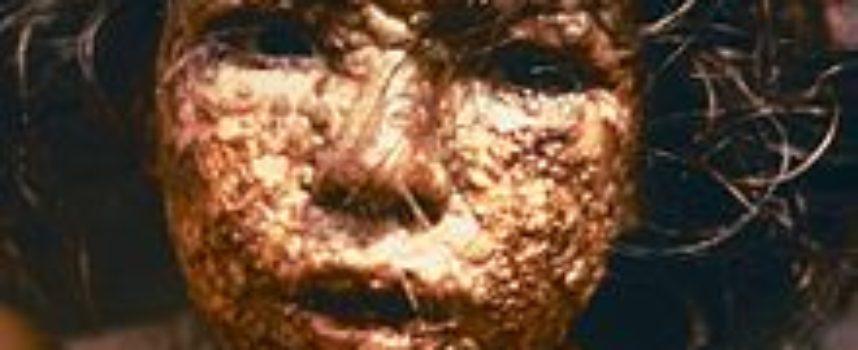Accadde oggi, 9 Dicembre 1979: l'umanità dichiara di aver debellato il Vaiolo