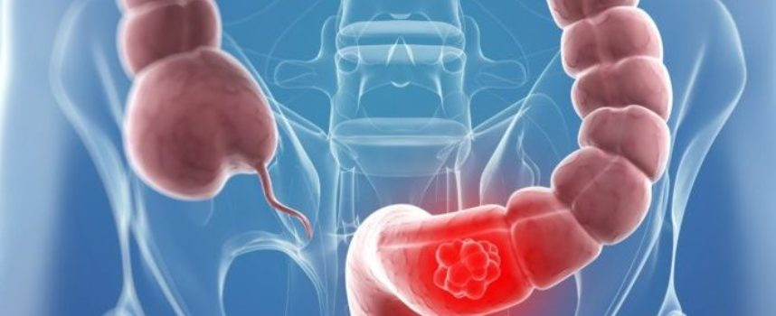L'assunzione di antibiotici aumenta il rischio di cancro al colon.