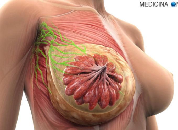 """Tumore al seno: l'importanza della diagnosi precoce al centro """"Il bucaneve"""""""