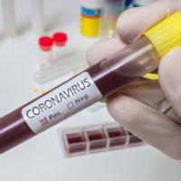 Aggiornamento Coronavirus  – Bollettino di giovedì 2 aprile 2020, ore 19 – 4 decessi