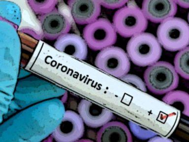 """Aggiornamento situazione Coronavirus """"Covid-19"""" – Bollettino di martedì 11 agosto 2020"""